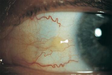 Millist kaitset vajavad silmad?